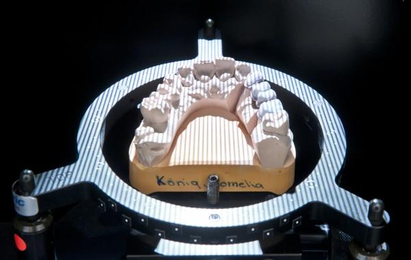 Industrie – 3D Laser